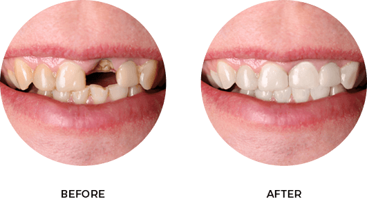 Before After Image 04