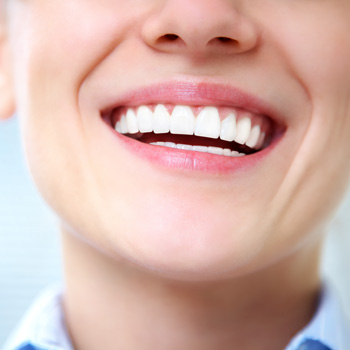 Image of a smiling women with bright white teeth