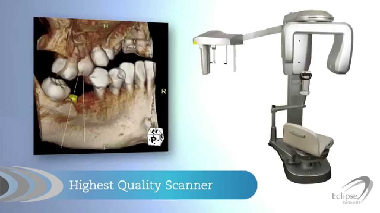 High quality PreXion 3D x-ray scanner image