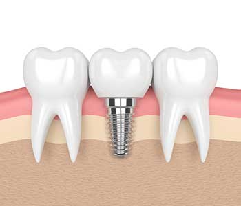 San Mateo, CA dental office explains the benefits of dental implants treatment