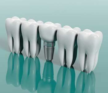 Restore Your Perfect Smile With Dental Implants in San Mateo area